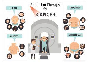 BT xóa tan nỗi lo tác dụng phục xạ trị
