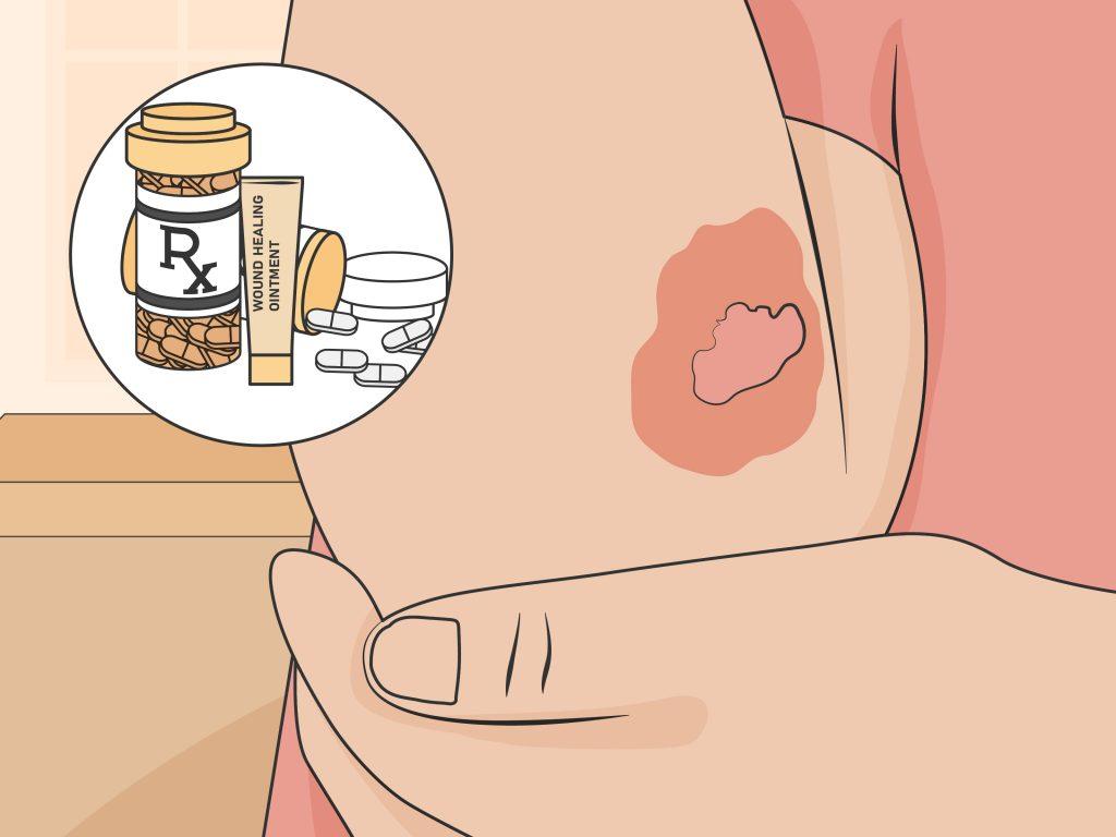 betaglucan triterpen giảm bỏng rát da do xạ trị